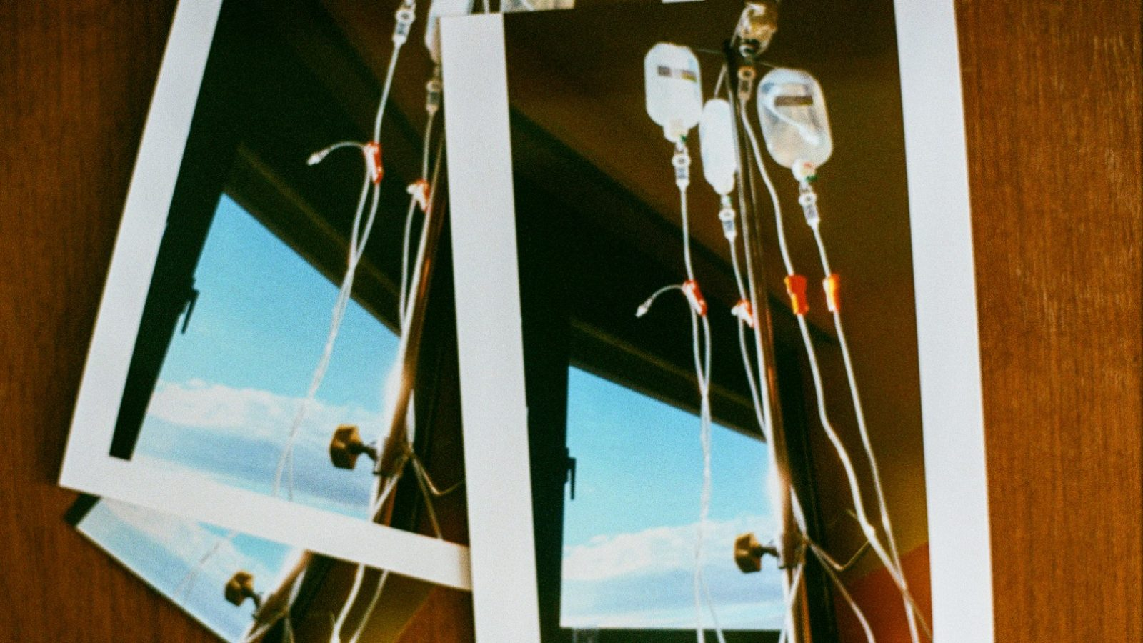 Bild zeigt einen Infusionsständer mit Chemotherapieflaschen. Durch ein Fenster scheint die Sonne herein und spiegelt sich in den Schläuchen